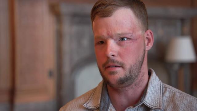 Trasplante facial después del intento de suicidio, aquí está su nueva cara
