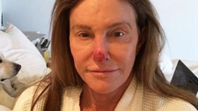 Jenner shared a photo of herself after doctors removed cancerous tissue