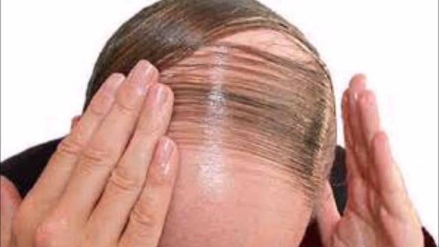 Revelan motivos que ocasionan caída del cabello