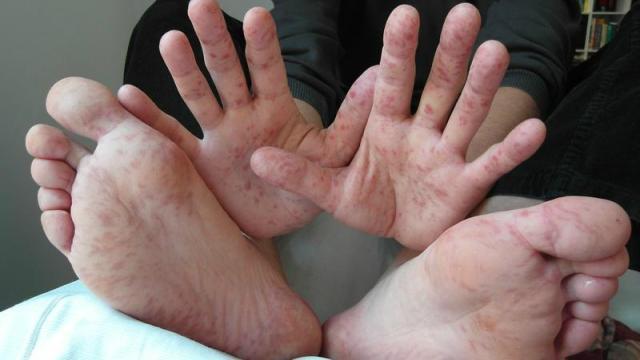 Saiba tudo sobre a síndrome mão-pé-boca