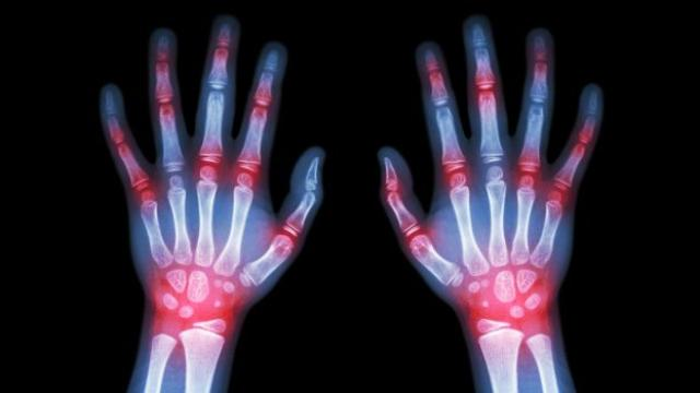 Artritis reumatoide: síntomas y tratamiento