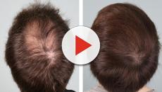 Perdita di capelli e calvizia  ecco quale meccanismo ne restituisce la  vitalità 207a1e39abe2