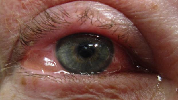 Conjuntivite: quais os sintomas, tipos, formas de tratamento e prevenção, veja