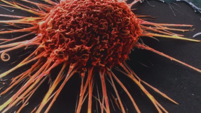 Tumores, buenas noticias del medicamento italiano entrectinib