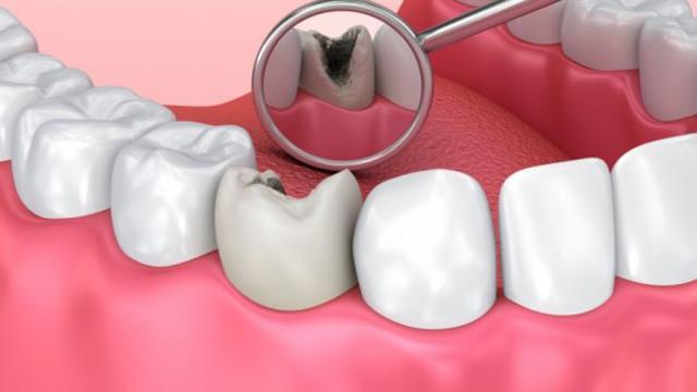 Caries dentales: causas, síntomas y tratamiento