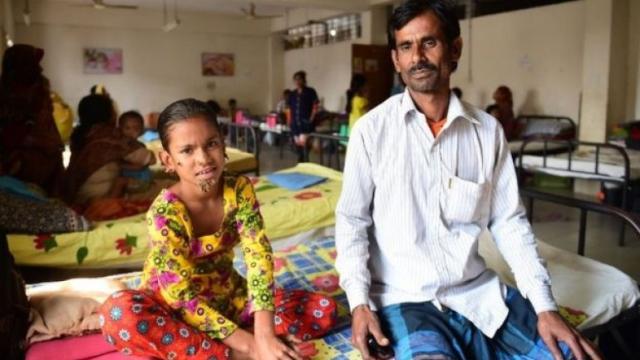 Sahana Khatun, el caso de la niña afectada por el síndrome del hombre árbol
