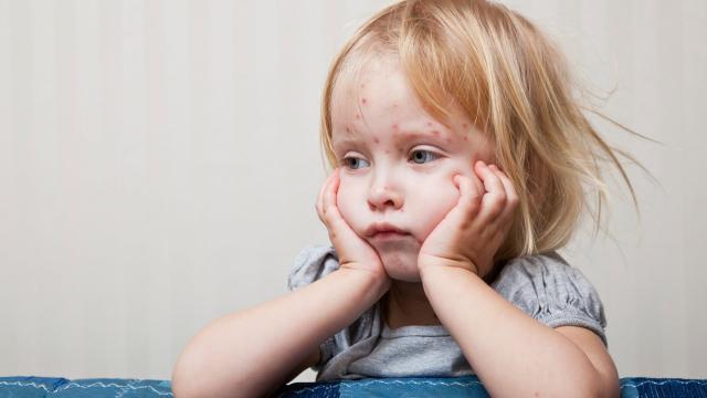 Epidemia del sarampión: el Ministerio de Salud pone en marcha la alarma