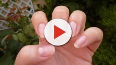 Enfermedades que puedes determinar por el aspecto de tus uñas
