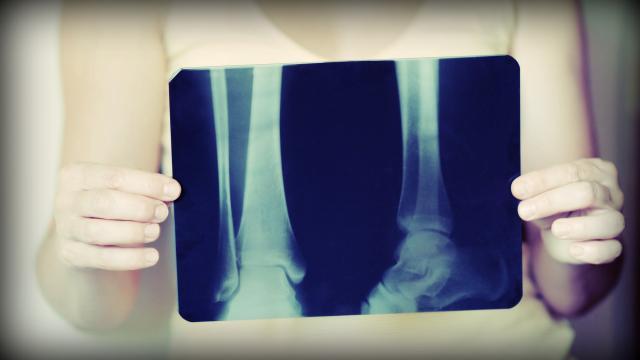 Osteoporosis, prevención con ciruelas pasas