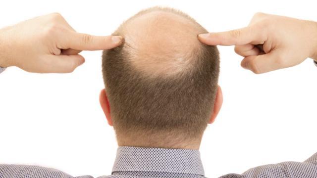 ¿Puede una deficiencia de vitamina D causar pérdida de cabello?