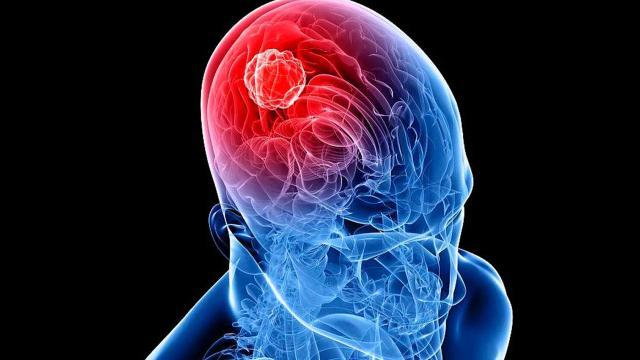 Aiom: 40% de los cánceres prevenibles, las 9 reglas a seguir