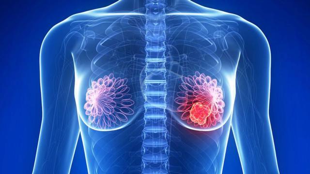 Tumores, descubrimiento en la molécula asesina de Padua capaz de matarlos