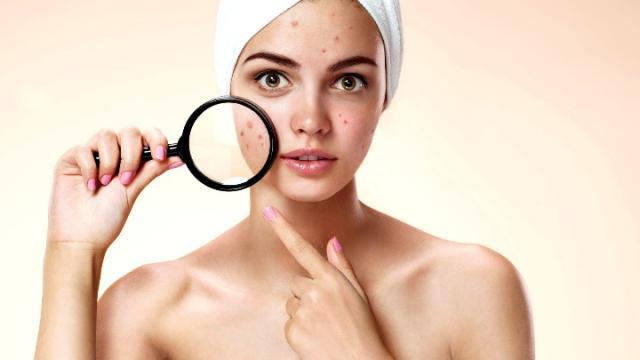 Aceite de jojoba: remedio natural contra el acné y las cicatrices