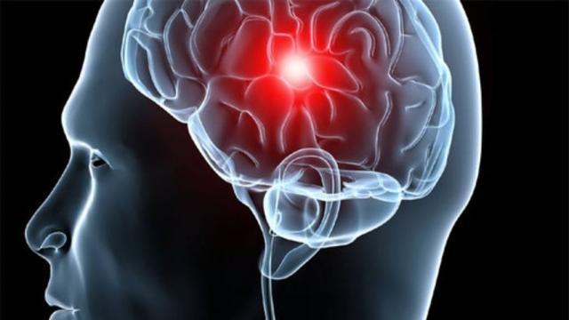 ¿Cuales son los primeros signos de la demencia?