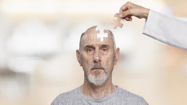 ¿Cuales son las causas de la demencia?