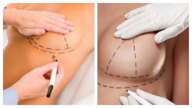 Cirugía de mastoplastia aditiva, todo lo que necesita saber