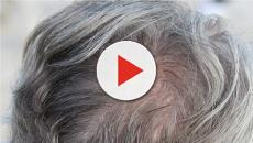 Capelli bianchi e infezioni: ecco cosa potrebbe causarne la crescita