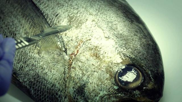 Alarma Anisakis: cada vez más personas afectadas por el gusano de sushi