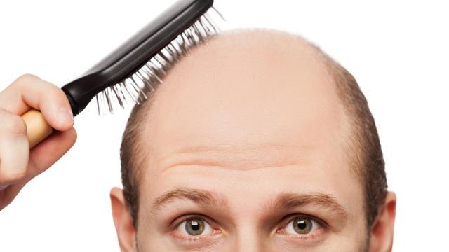 ¿Es Thiocyn la nueva cura milagrosa para la pérdida de cabello?