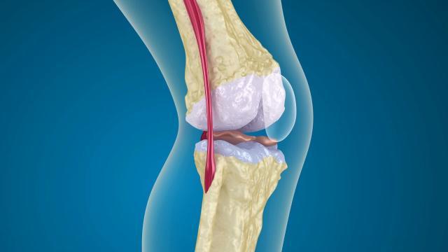 Osteoporosis, descubra la cura de la enfermedad