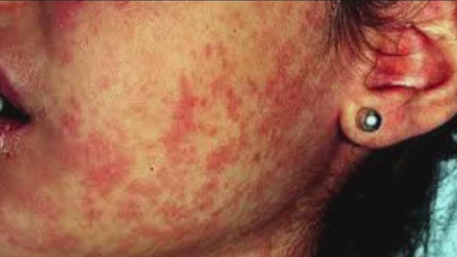 Miedo de sarampión: casi el 90% de los nuevos pacientes no fueron vacunados