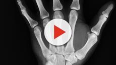 ¿Cuales son los síntomas del cáncer de hueso?