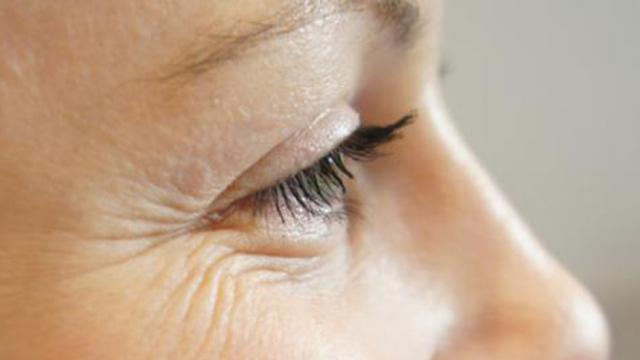 Elimina las arrugas de tu cara en un abrir y cerrar de ojos.