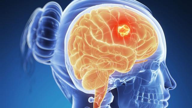 ¿Cuáles son los síntomas del tumor cerebral?