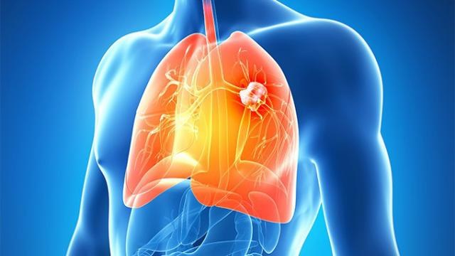 El cáncer de pulmón es alarmante: las mujeres son mas afectadas que los hombres