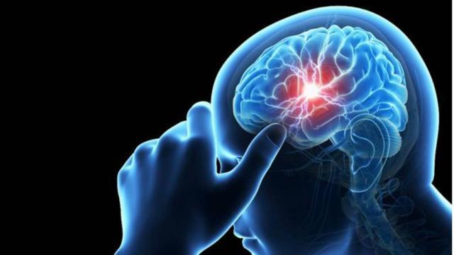 Cómo detectar los posibles síntomas de aneurisma cerebral