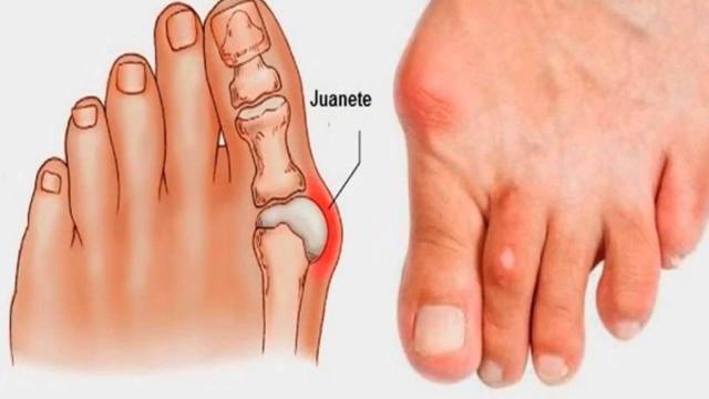 Juanetes: Cómo se puede evitar esta dolorosa condición del pie