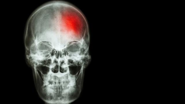 Grupos sanguíneos que identifican el riesgo de accidente cerebrovascular