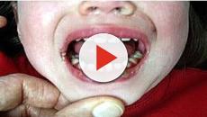 VÍDEO: La estomatitis herpética, sigue siendo un problema