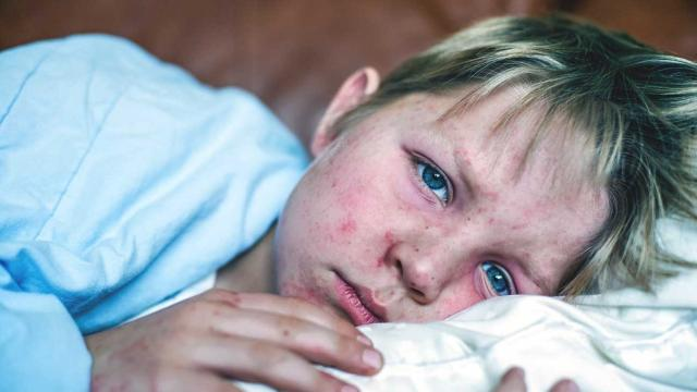 Young people warned of measles and summer travel to Europe