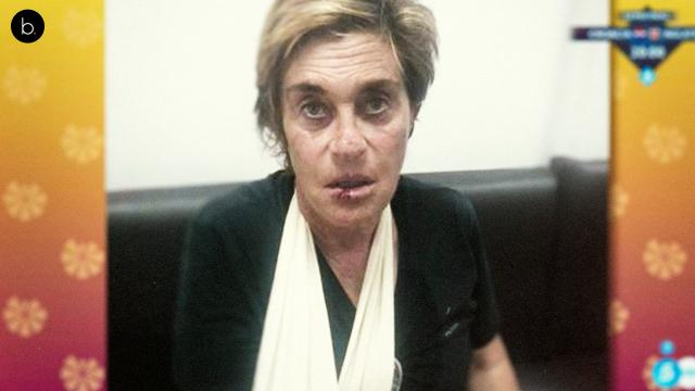 Chelo García Cortes se parte el labio en una aparatosa caída