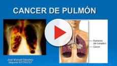 Cáncer de pulmón: Podrá prevenirse a partir de un nuevo análisis de sangre