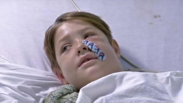 US boy makes miraculous recovery after meat skewer pierces his head