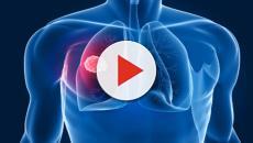 Tumore al seno, scoperto un inibitore del suo 'motore'