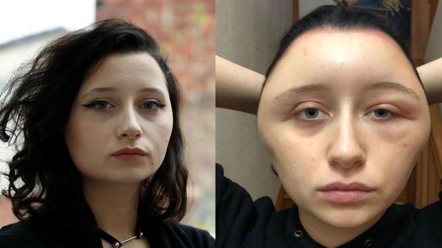 Estelle, 19 ans, défigurée à cause d'une coloration pour cheveux