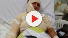 Homem joga banha de corpo fervendo na esposa que teve 70% do corpo queimado