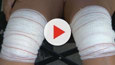 Médico se confunde e opera joelho errado de mulher em Minas Gerais