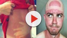 Fotos provando que o sol é um dos piores tatuadores