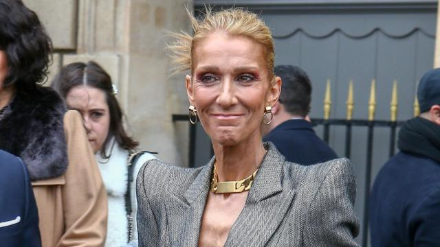 Céline Dion amaigrie, les fans sont inquiets