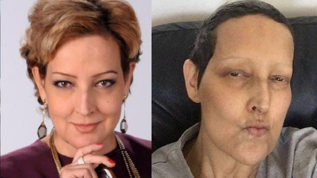 6 famosas que morreram ao longo da luta contra o câncer