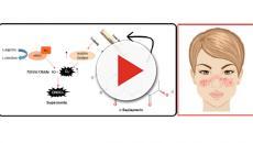 I ricercatori hanno scoperto che L-sepiapterina protegge il cuore dei pazienti con lupus