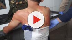 Médica é afastada após atender um paciente com o pulmão perfurado e liberá-lo