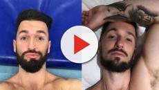 5 artistas antes e após aderirem à técnica de harmonização facial