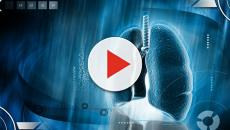 Artificial intelligence diagnoses lung cancer