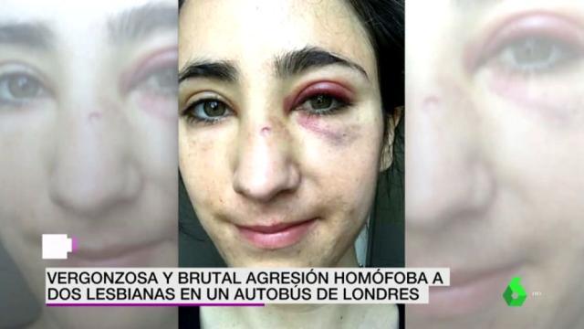 Dos mujeres reciben una paliza en Londres por ser gays