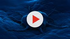 Programmi informatici degli astronomi utilizzati per debellare i tumori